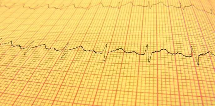 EKG heartbeat