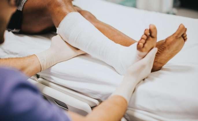 Woman's leg in cast